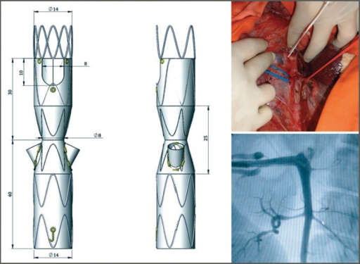 Hourglass endograft adapted for placement in the porcine model of juxtarenal aneurysm (left) and images of an aortography in one pig (right).