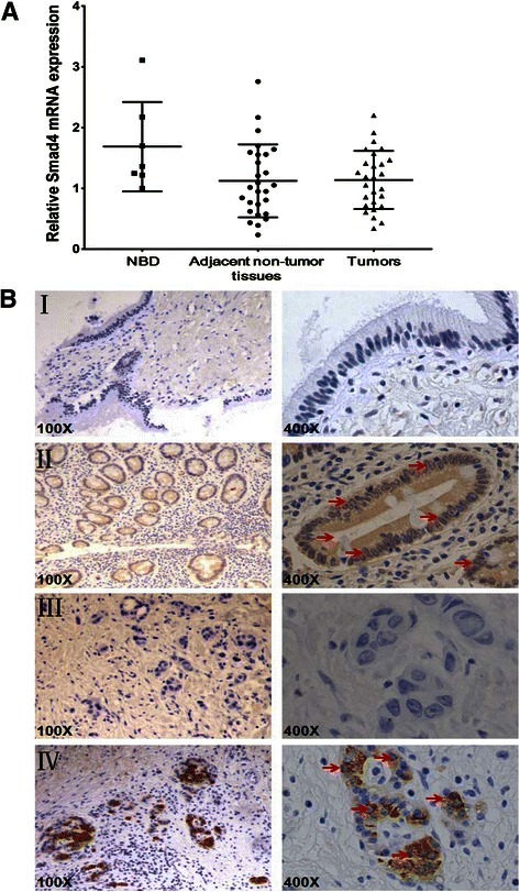 The expression levels of Smad4 in the primary EHCC and NBD specimens. a The mRNA expression level of Smad4 in the primary EHCC, the adjacent non-tumor tissues and NBD specimens determined by qRT-PCR. U6 was used as the internal control. b Immunohistochemical staining of Smad4 protein expression in primary EHCC and NBD samples. The arrows indicated nuclear staining of Smad4 in both NBD and EHCC samples. (I) Low Smad4 protein expression in a NBD. (II) High Smad4 protein expression in a NBD. (III) Reduced Smad4 protein expression in a primary EHCC. (IV) High Smad4 protein expression in a primary EHCC. Original magnification, 100× and 400× respectively for each slide
