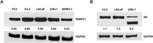 PABPC1 is expressed in prostate cancer cells.(A) Prostate cancer cell lines (PC3, LNCaP, C4-2, and 22Rv1) and normal prostate cells (WPMY-1) were analyzed by Western blot for protein expression levels of PABPC1 (Santa Cruz). (B) Expression levels of the AR in C4-2, LNCaP, and 22Rv1 cell lines. GAPDH (Santa Cruz) was used as a loading control. The numbers indicate the relative expression of PABPC1 or AR quantitated using ImageJ software when normalized to GAPDH.
