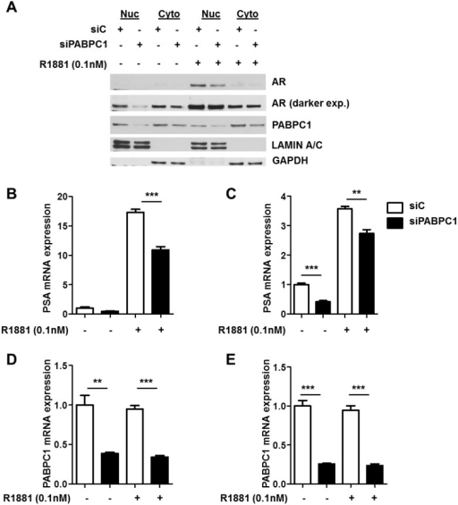 Knockdown of PABPC1 with siRNA decreases nuclear AR protein levels and PSA mRNA expression levels.(A) C4-2 cells were transfected with control siRNA (siC) (40 pmol/mL) or siRNA (40 pmol/mL) specific for PABPC1 (siPABPC1) for 48 hours followed by treatment with 0.1nM R1881 for 24 hours in the presence of 5% charcoal-stripped FBS RPMI. Nuclear and cytoplasmic extracts were analyzed by Western blot. GAPDH (Santa Cruz) and Lamin A/C (Genscript, Piscataway, NJ) were used as loading and cell compartment controls. PSA (B-C) and PABPC1 (D-E) mRNA expression levels were detected in LNCaP and C4-2 cells following siPABPC1 treatment as in (A). Expression was normalized to GAPDH. Experiments were reproduced twice. Significance was determined by Student's t-test (**p<0.01, ***p<0.001).