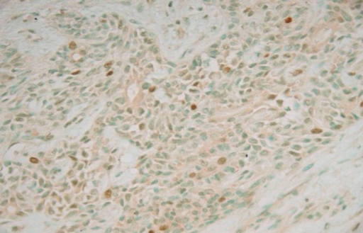 P27 nuclear staining with high staining in tumour duct cells of pleomorphic adenoma