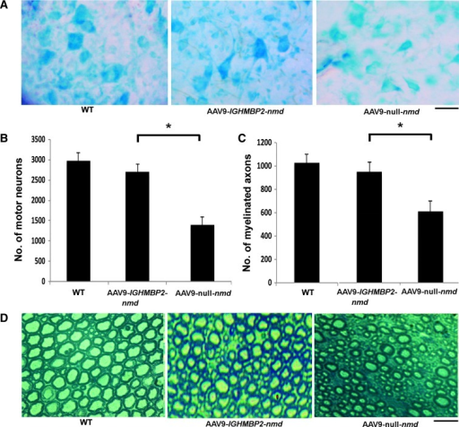 AAV9-IGHMBP2 increases motor neuron and axon number.(A) Representative motor neuron pools in the lumbar segment of the spinal cords of AAV9-IGHMBP2-nmd, AAV9--nmd, and WT mice at 4 weeks of age. (B) Quantification of motor neurons in the lumbar spinal cords of treated mice and WT mice (mean ± SD) at 4 weeks of age (n = 6 per group per time point). (C) Quantification of myelinated axons in the L4 anterior roots in WT, AAV9-IGHMBP2-nmd, and AAV9- nmd mice (mean ± SD) at 4 weeks of age (n = 6 per group per time point). Motor neuron and myelinated axon counts significantly increased in the AAV9-IGHMBP2 treatment group compared to the AAV9- group (*P < 0.0001). (D) Representative images of the L4 anterior roots of AAV9-IGHMBP2-nmd, AAV9--nmd, and WT mice at 4 weeks of age. Scale bar, 50 μm (A and D).
