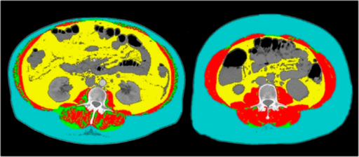 Comparison of two female patients with cirrhosis. Abdominal computed tomography images taken at third lumbar vertebra. Red color indicates skeletal muscle, green color indicates intermuscular adipose tissue, yellow color indicates visceral adipose tissue, and teal indicates subcutaneous adipose tissue. The patient at the left has severe sarcopenia (lumbar skeletal index, 35 cm2/m2) and the patient at the right is not sarcopenic (lumbar skeletal index, 54 cm2/m2).
