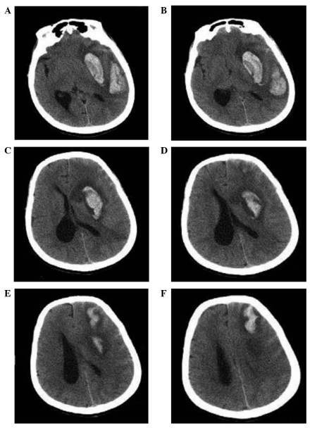 Preoperative cranial computed tomography scans showing multiple intracranial hemorrhages in sections of the (A and B) basal ganglia, (C and D) lateral ventricle body and (E and F) lateral ventricle loop. Irregular high density zones in the basal ganglia, posterior temporal lobe and frontal lobe, with mild peripheral edema. The left ventricle showed deformation under compression, with the midline shifted to the right.