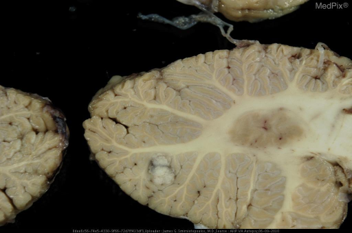 Lung cancer (squamous cell) metastatic to the brain.  There are multiple lesions - all very well demarcated from the surrounding brain.