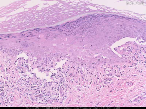 Histopathology: The biopsy shows lichenoid vacuolar interface alteration typical of lichen planus.