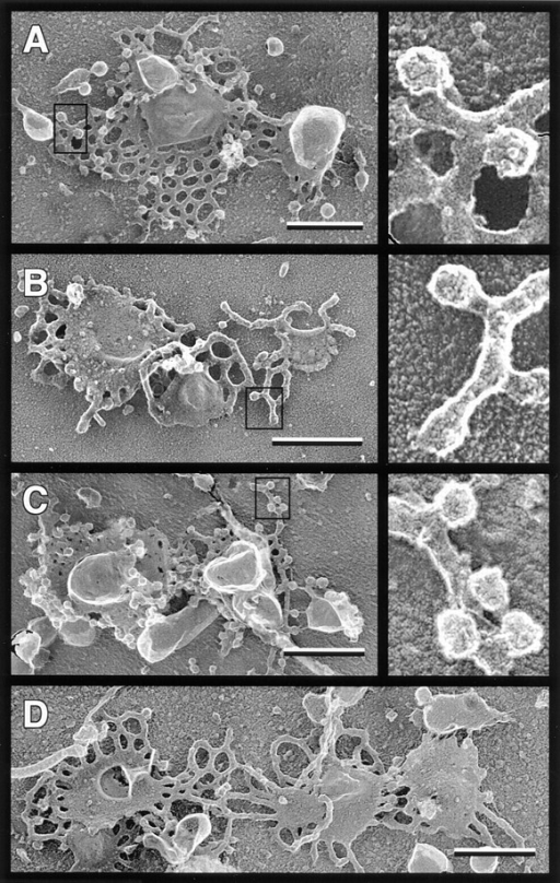Golgi coated bud formation is blocked by ARF depletion and restored by purified ARF. Replicas of Golgi membranes  after a 15-min transport incubation were prepared as described in  Materials and Methods. The transport reaction mixtures contained (A) unfractionated bovine brain cytosol (2.4 mg/ml); (B)  ARF-depleted bovine brain cytosol (2.4 mg/ml); (C) ARF- depleted cytosol plus myr-rARF1 (120 μg/ml, 5.7% myristorylated); and (D) ARF-depleted cytosol plus non–myr-rARF1 (120  μg/ml). Boxed areas are presented at higher magnification in the  panels on the right side of the figure, illustrating the punctate surface coating on Golgi buds in A and C. Buds in B lack this punctate coating and have a granular texture similar to the surrounding tubules. Bars, 0.5 μm.