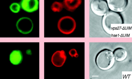 When Hse1p–Vps27p does not bind Ub (top), Ub-tagged proteins (green) escape the vacuole (red).Piper/Macmillan