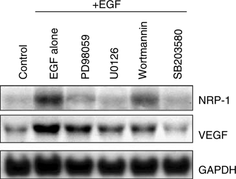 Effect of Erk1/2, Akt, and P38 MAPK inhibition on NRP-1 and VEGF induction by EGF in NCI-N87 cells. The cells were incubated in 5% serum-containing medium overnight and then were pretreated with 50 μM PD98059, 10 μM U0126, 200 nM wortmannin, or 25 μM SB203580 for 1 h in 1% FBS-containing medium. EGF (50 ng ml−1) was then added for 24 h. Control cells were not treated with EGF (lane 1) and cells treated with EGF without addition of signalling inhibitors served as another internal control (lane 2). Total RNA was extracted, and Northern blot analysis was performed. Blockade of the Erk1/2, Akt or P38 pathways all led variable decreases in NRP-1 and VEGF mRNA expression.