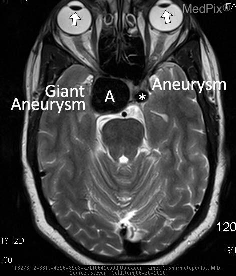 There is a giant (>25mm) aneurysm (A) in the right cavernous sinus.  There is another, smaller ICA aneurysm (*) in the left cavernous sinus.  The eyes show dysconjugate gaze (arrows), with the right eye unable to move laterally - an abducens (6th) nerve palsy.