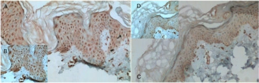 Immunohistochemical staining of XBP1 protein in the paired lesional (A,B) and non-lesional skin (C,D) of a patient with vitiligo (magnifications: (A,C)×200; (B,D)×400).