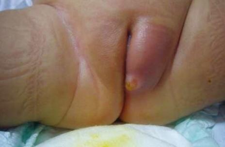 Fetus No Anus Cause