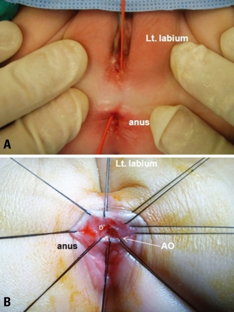 (A) A vessel loop was passed through the anorectal vestibular fistula. (B) The anal opening (AO) was seen. We observed several characteristic features of the anal openings in our series of patients: they were rather wide, located just above the dentate line (D), had definite dimpling around the opening, were always located in the 12 o'clock direction, and did not originate from the anal crypts.