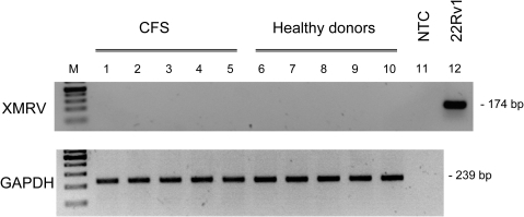 Lack of infection of XMRV susceptible LNCaP cells by co-culture with activated PBMCs.PCR results with isolated LNCaP cell DNA after co-culture with PBMCs from CFS patients (lane 1–5) and healthy donors (lanes 6–10). Five representative samples out of 10 co-cultures for each group are shown. As control, LNCaP cells were infected with XMRV-containing supernatant from 22Rv1 cells (lane 12). A water-only control (no template control, NTC) was run in lane 11. Results of the GAPDH PCR with the same samples are shown in the lower panel. M  = 100 bp marker.