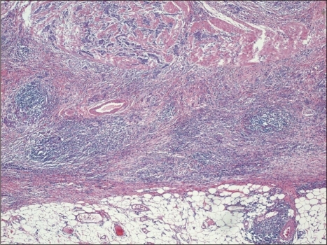 Carcinoma with Crohn's disease-like lymphoid reaction (H&E stain, ×4). Well-formed lymphoid follicles are easily found, but the tumor margin is somewhat infiltrative and tumor cells outnumber lymphocytes.