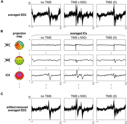 Artifact rejection from TMS-EEG data by using independent component analysis in a typical participant. (A) Averaged EEG waveforms in no-TMS stop trials (left panel), stop trials with contralateral-TMS at -500 and 0 ms (middle and right panels) recorded from 61 surface electrodes. (B) Averaged independent component (IC) waveforms and their projection maps in no-TMS stop trials (left panel), stop trials with contralateral-TMS at -500 and 0 ms (middle and right panels) extracted from 61 EEG waveforms. In order of their variance size, the largest component (IC1), fifth largest component (IC5), and ninth largest component (IC9) were selectively shown. (C) Artifact-removed averaged EEG waveforms in no-TMS stop trials (left panel), stop trials with contralateral-TMS at -500 and 0 ms (middle and right panels).