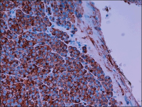Histological slide showing glomus cells staining positively with smooth muscle actin (X40 magnification) in keeping with modified smooth muscle cells.