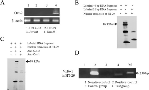 Oct-1 but not Oct-2 binds to the octamer element. (A) Oct-2 was not detected in epithelial cancer cells by RT-PCR. (B) The EMSA assay for octamer motif binding factors located in the promoter region of VH6-1 in HT-29 cells. The 40-bp DNA fragment was derived from upstream of the VH6-1 gene and contains the octamer motif, while the 32-bp DNA fragment was derived from the 40-bp DNA fragment with an 8-bp deletion in the octamer motif. (C) The super-shift assay for octamer motif binding factors with the addition of an anti-Oct-1 or anti-Oct-2 antibody in the binding reaction system. The results are representative of three independent experiments. EMSA, electrophoretic mobility shift assay. (D) The Oct-1 binding DNA fragment of the VH6-1 promoter was amplified via Chip-related PCR. Negative control: no template in the PCR reaction system; positive control: the sonicated chromatin fragments of the cells were used as the PCR template; control group: no antibody added to the IP system; test group: dilutions of IP were used as templates for PCR to amplify the Oct-1 binding DNA sequence. The results are representative of three independent experiments.
