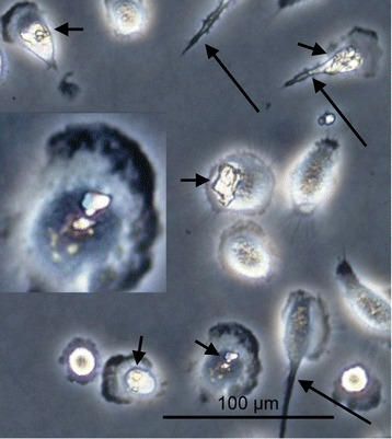 A phase contrast micrograph of macrophages in culture after exposure to cystine crystals. Many macrophages show intracellular crystals (short arrows) and some show pseudopodia (long arrows) to help in movement and engulfment of the crystals.