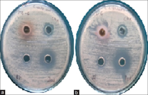 (a and b) Zone of inhibition by mango and cashew extract against Candida albicans, respectively. In each plate from upper left extract, chlorhexidine gluconate-based mouth rinse, povidone-iodine-based mouth rinse and ethanol are placed in clockwise direction