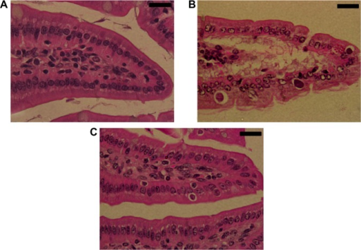 Effect of ZNPs on Eimeria papillata-induced jejunum injury on day 5. (A) Noninfected jejunum with normal architecture of the absorptive epithelium and lamina propria. (B) Infected jejunum with some pathological changes in lamina propria and absorptive epithelia. Developmental stages appearing in the absorptive epithelia. (C) Infected treated mouse exhibiting fewer parasites.Notes: Sections are stained with hematoxylin and eosin. Bar =25 μm.Abbreviation: ZNP, zinc oxide nanoparticle.