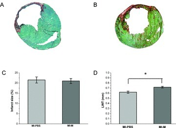 Effects of local matrigel injection on cardiac remodelling 4 weeks after MI. (A), (B) Representative heart cross sections stained with Sirius Red (red, fibrosis) and Fast Green FCF (green, myocyte) from rats. (C) Ratio of infarction size to entire heart is not significantly decreased in MI-M (n= 10) compared with MI-PBS (n= 10). (D) The infarct LWT is significantly higher in MI-M (n= 10) compared with MI-PBS (n= 10). *P < 0.01.
