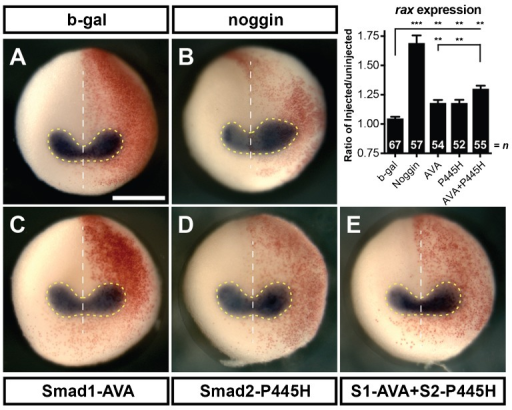 Injection of Smad1-AVA (S1-AVA) and Smad2-P445H (S2-P445H) act additively to cause expansion of eye field.Whole mount in situ hybridization for the eye field marker, rax (A–E) conducted on stage 15 embryos unilaterally injected with 125 pg of S1-AVA RNA, 3 ng of S2-P445H and 100 pg of β-gal. Area of rax expression was calculated by measuring the region within the dashed yellow lines on each side of the midline (white dotted line) as shown. Graph shows the ratio of the area of the injected side to the uninjected side. Red β-gal stain indicates injected side. Scale bar, 500 µm. Error bars  =  ±s.e.m.; **p<0.01; ***p<0.001.