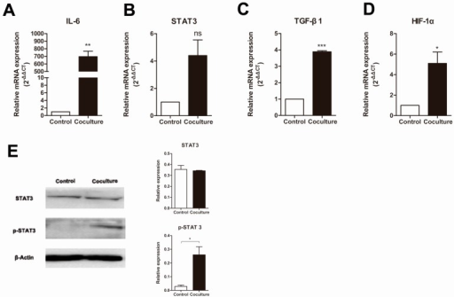 Changes in the expression of macrophage expressed genes in macrophages co-cultured with apoptotic MCF-7 cells. Relative amounts of mRNA of (A) IL-6; (B) STAT3; (C) TGF-β1; (D) HIF-1α mRNA was determined by real-time RT-PCR, where β-actin was used as an internal standard. Control is normal cultured macrophages while co-culture is macrophages grown with apoptotic MCF-7 cells. Results are typical of three independent experiments. Data represent means ± S.E. (n = 3). *p < 0.05, **p < 0.01, ***p < 0.001, ns means no significance; (E) Analysis of the phosphorylation of STAT3 in macrophages (Control) or macrophages cocultured with apoptotic MCF-7 cells (Coculture) by Western blot. Bands were analyzed using Quantity One software with β-actin used as a loading control. Protein levels were compared to the normal group. Results are typical of three independent experiments. Data represent means ± S.E. (n = 3). *p < 0.05.