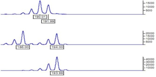 The capillary electrophoresis of CA repetition Upper: CA repetitive heterogeneous; Middle: 4 CA repetitive heterogeneous; Lower: Homogeneous.