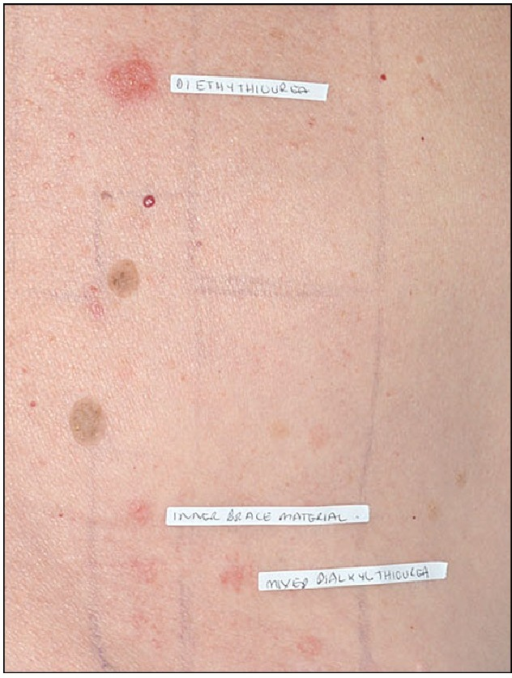 Positive patch test reaction to mixed dialkylthiourea, diethylthiourea, and the supports' material.