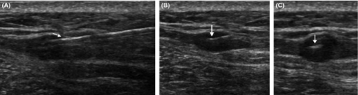 Ultrasound guided seed insertion (A) Long-axis view showing seed deployment needle (arrow) within a hypoechoic posterior chest wall mass corresponding to the lesion seen on the PET-CT study. (B) Long-axis and (C) short-axis views of the lesion taken immediately after seed deployment. The seed is seen as a linear echogenic structure (arrow).