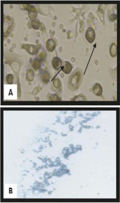 Morphological and histological staining of BM-MSCs differentiated into chondrocytes(A) (×20) Arrows for differentiated MSCs chondrocytes after addition of growth factors(B) (×200) MSCs differentiated into chondrocytes stained with Alcian blue stain