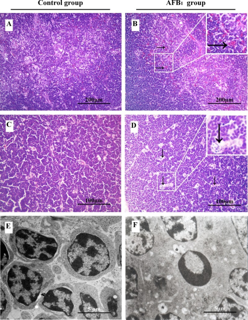 The Impact Of Aflatoxin B1 Exposure On Thymus Histopath Open I