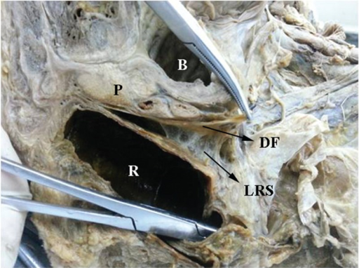 Cadaver study on Denonvilliers' fascia (DF). DF is located between the prostate (P) and rectum (R). DF is more closely adherent to the prostate than to the rectum. There are some loose reticulate structures (LRS) between DF and rectum. B = bladder.