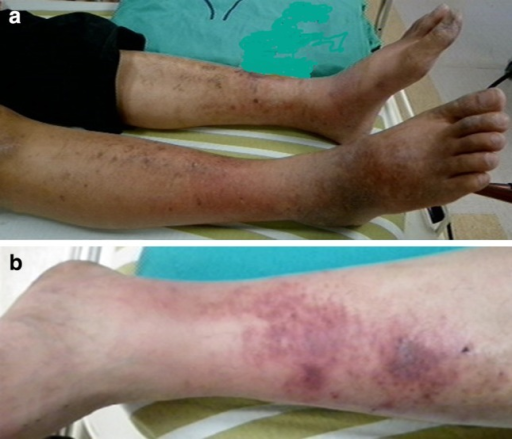 Extrahepatic cutaneous dermatitis and vasculitis in patient number 13. a Dermatitis with hyperpigmentation-affected bilateral lower limbs; b non-blanching purpura were the main characteristics of vasculitis