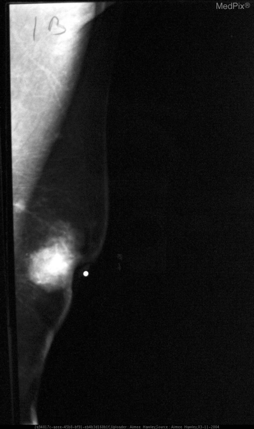 Note dense subareolar mass and nipple retraction