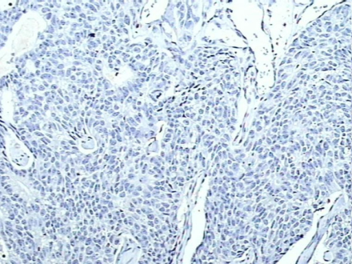 Negative control, S100A4 protein immunohistochemical staining in breast cancer tissue, showing absent staining (×200).