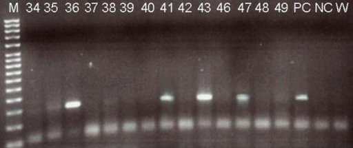 Electroforetical analysis of nested PCR products. In left line – MW marker, lines marked 34 – 49 are negative and positive samples, PCR product size 150 bp, + – positive control (described in protocol), 0,0 – double negative control (PCR premix with no DNA).