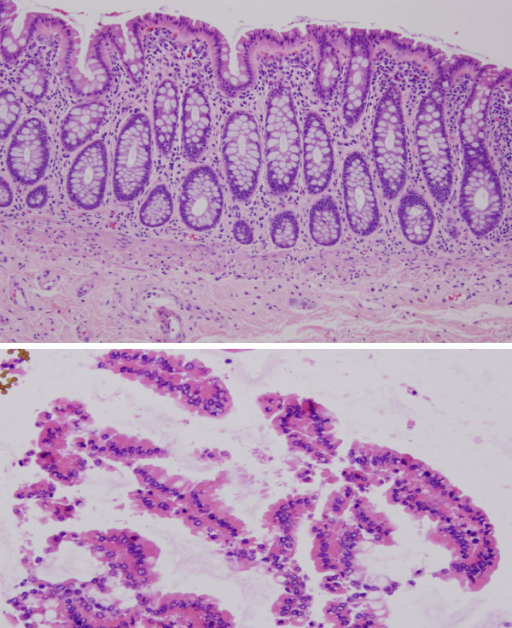 Histology of colonic mucosa. (1a) Section of mucosa was stripped off the colectomy specimen and processed by formalin fixation and paraffin embedding. The mucosa is composed of the lamina propria and epithelium. As is evident, it is not a homogeneous collection of cells, but rather a composite of the cells that are present in the lamina propria (chronic inflammatory cells, smooth muscle cells and vessels) and epithelium (hematoxylin and eosin 10×). (1b) Histologic evidence of enrichment for colonic epithelial cells from the procurement approach described in the text (hematoxylin and eosin 20×).
