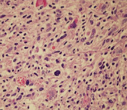 Histopathology of the UES of the liver with irregular spindle cells showing moderate pleomorphism and brisk mitotic activity.