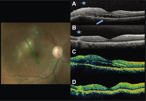 Fundus photography and radial scans at baseline by SD-OCT A) and TD-OCT C). Increased thickness and disorganization of the retinal layers at the lesion site at A and C (asterisk). Subretinal fluid at the foveal area. Small RPE detachments (arrowhead) only in A. Six-week follow up images by SD-OCT B) and TD-OCT D) show resolution of the subretinal fluid and decrease of the retinal thickness at the lesion site.Abbreviations: OCT, optical coherence tomography; SD, spectral domain; TD, time domain.