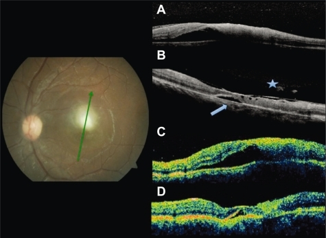 Fundus photography at baseline. Radial scans at baseline by SD-OCT A) and TD-OCT C) shows increased thickness at the lesion site and foveal subretinal fluid. At follow up, residual fluid (arrowhead) both by SD-OCT B) and TD-OCT D). Partial detachment of the posterior hyaloid and adhesion to the fovea only seen by SD-OCT (asterisk).Abbreviations: OCT, optical coherence tomography; SD, spectral domain; TD, time domain.
