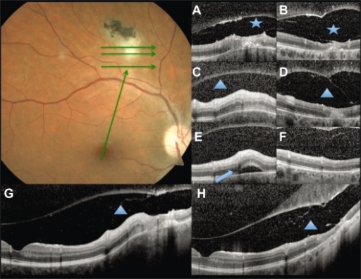Baseline fundus photography. Green arrows show the scan acquisition protocol used by spectral domain optical coherence tomography. A, C, and E are from the volume scans at baseline, and G, a linear scan from the fovea to the lesion. B, D, F, and H correspond to the same points at follow up. Vitreoschisis (asterisk) can be noticed at baseline A) and after 6 weeks B). Note the expanded vitreous detachment at follow up. Subretinal fluid at the lesion site (arrowhead) is seen at baseline E) with resolution after 6 weeks F). The triangle shows the retinochoroidal lesion increased thickness at baseline (C, G) and atrophy at follow up (D, H).