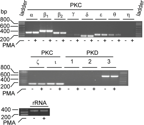 PKC and PKD isoenzymes expressed in THP-1 cells.RT-PCR was used to detect the PKC and PKD isoenzyme mRNA present in cells incubated in the absence (−) or presence (+) of 10-7 M PMA. To ensure that equal amounts of cDNA has been used in samples from control and PMA stimulated cells, rRNA was used as a standard. The probes used are described in Materials and Methods. Ladder is a marker with DNA fragments of known size (in bp).