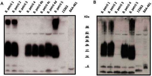Immunoblots with patient's serum against her own and reference strains.An aliquot containing 10 µg of protein from the soluble (A) and insoluble (B) fractions obtained from B. petrii strains was electrophoresed on 12% SDS–PAGE, and then transferred to PVDF membrane. The membrane was incubated with the patient serum (1∶5000 dilution) obtained ∼2 months after isolation of B. petrii 3 and then horseradish peroxidase conjugated sheep anti-human IgG (1∶10000). The blots were developed using the enhanced chemiluminescence kit. B. petrii 4, B. petrii 4b, B. petrii 4c and B. petrii 4d refer to four different colonies obtained from the primary isolation plate of B. petrii 4. Fig. 2B had a shorter exposure time than Fig. 2A, so bands could be better visualized. If using similar exposure times, the intensity of the bands in Fig. 2B is 48% higher than in Fig. 2A (as determined by densitometric analysis).