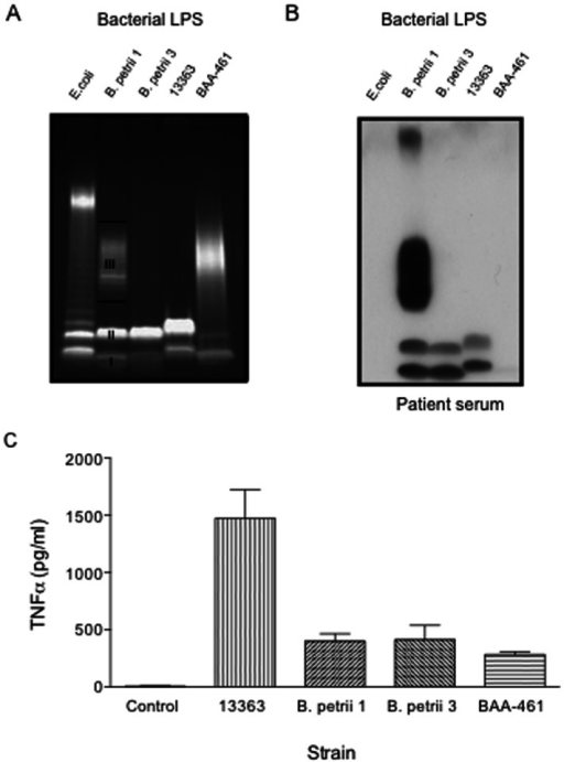 SDS PAGE (A), immunoblots with our patient's serum (B) and TNF-α induction of B. petrii LPS.(A) Five ml overnight cultures from each bacterial strain (B. petrii 1, B. petrii 3, NCTC 13363 and ATCC BAA-461) were spun 10 min at 8000g to harvest bacterial cells and LPS isolated by using a LPS extraction kit. Extracted LPS samples were separated on a 12% SDS-PAGE and stained using Pro-Q Emerald 300 Lipopolysaccharide gel stain kit. LPS concentrations were measured spectrophotometrically at 205 nm. Control E coli LPS was obtained commercially. I, II and III indicate LPS bands I, II and III respectively, described in the text (B) Immunoblots of our patient's serum against LPS were performed as described in Fig. 4A. (C) Purified LPS (200 ng/ml) was added to human peripheral blood mononuclear cells (PBMCs) from normal volunteers, and supernatants were collected for cytokine measurements after 20 hours. p<0.001 for NCTC 13363 vs B. petrii 1, B. petrii 3 or BAA-461. Graph shows mean and SEM from three experiments.