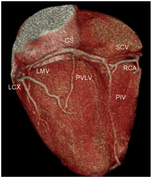 Volume Rendered Image Provides An Overview Of Coronary Open I