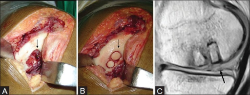 Mosaicplasty with poor MOCART score of 55. (A) Intraoperative image shows large osteochondral lesion (arrow) of medial femoral condyle. (B) Osteochondral plugs (arrow) have been placed in the lesion. (C) Postoperative sagittal T2W MRI shows graft subsidence (arrow) and poor congruity with the adjacent parent cartilage