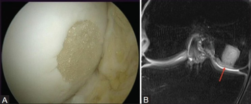 Synthetic osteochondral scaffold. (A) Arthroscopic image. (B) Coronal STIR MRI shows adequate incorporation of synthetic graft with a MOCART score of 90