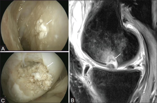 Failure of synthetic osteochondral scaffold implant with a MOCART score of 10. (A) Follow-up arthroscopic image show foreign body reaction with synovitis and (B) failure of graft incorporation (arrow). (C) Follow-up sagittal proton density MRI shows failure of graft incorporation with incomplete integration, damaged surface, and inhomogeneous signal of graft